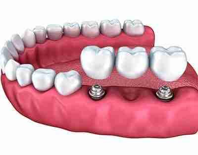 affordable dental implants in miranda