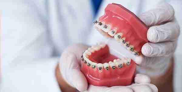 affordable braces miranda