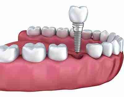 best dental implants miranda