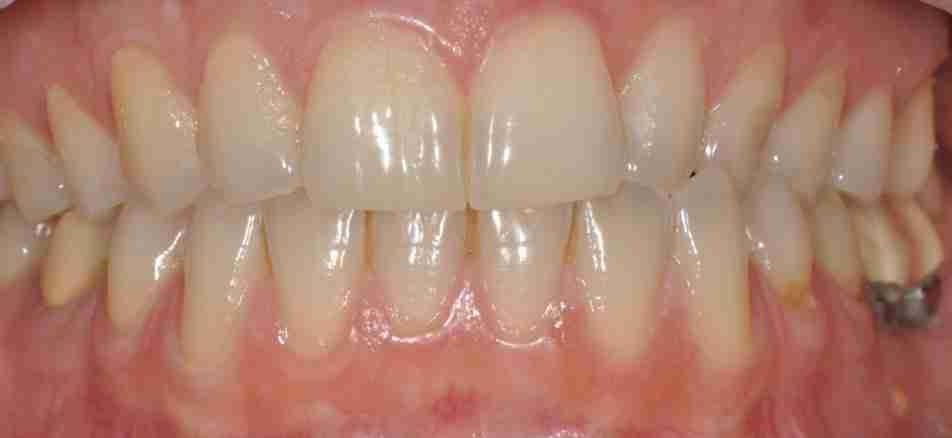 guided biofilm therapy teeth miranda